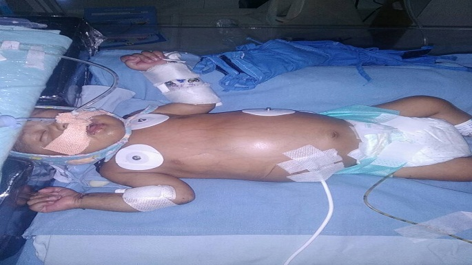 bhopal 2 month old child heart treatment