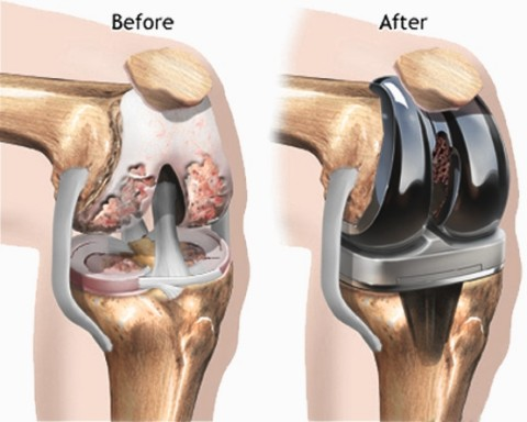 Knee Replacement New Advance Technic Lunch By Radius Joint