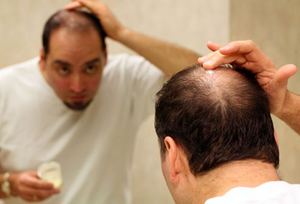 Know the Reason behind your Hairfall