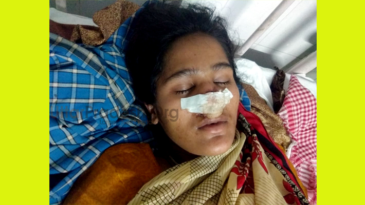 Shahjahanpur Tilhar: Husband cuts off wife's nose In minor dispute