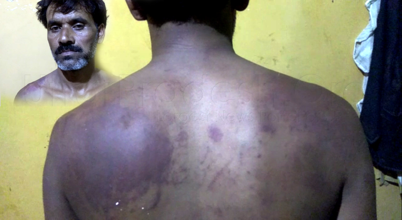 Hamirpur: BSP Chairman Accused of Brutally Beaten Sabhasad Family
